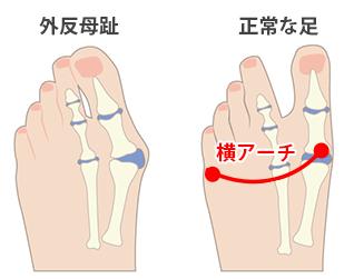 外反母趾と足の横アーチについて