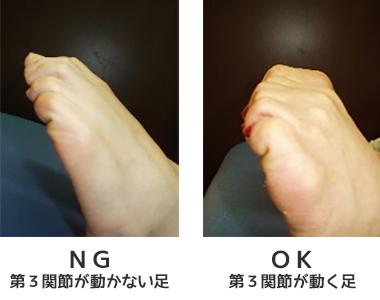 外反母趾:第三関節について