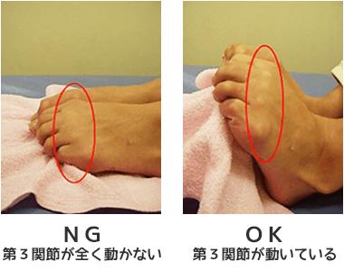 外反母趾:タオルを持ち上げる